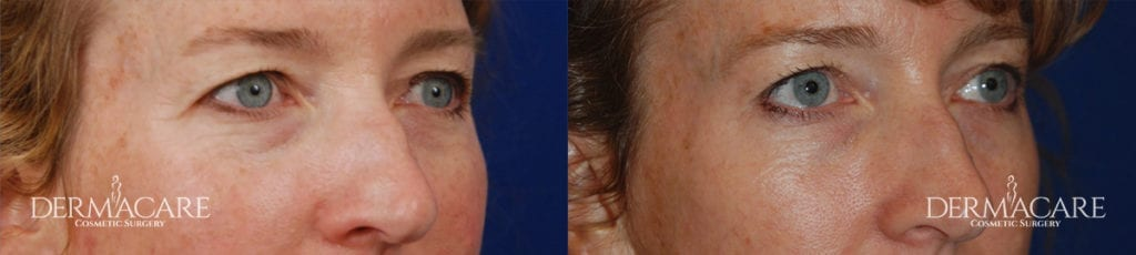 Blepharoplasty Before and After Patient 1