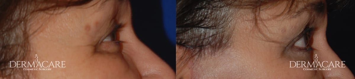 Blepharoplasty Before and After Patient 4