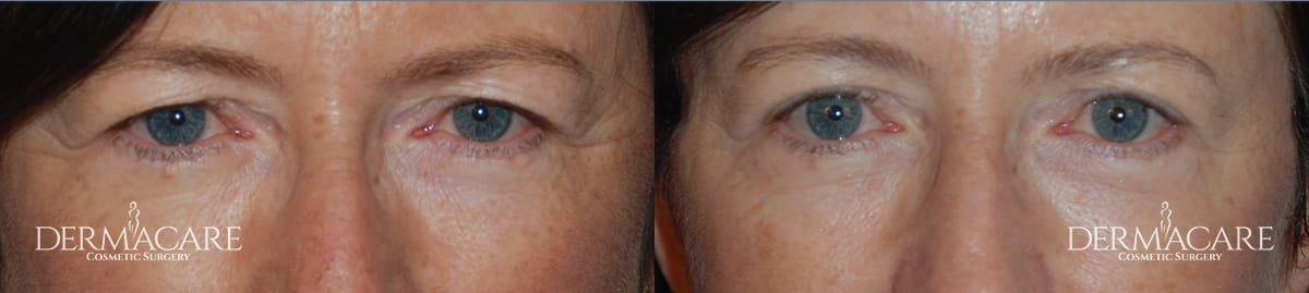 Blepharoplasty Before and After Patient 5