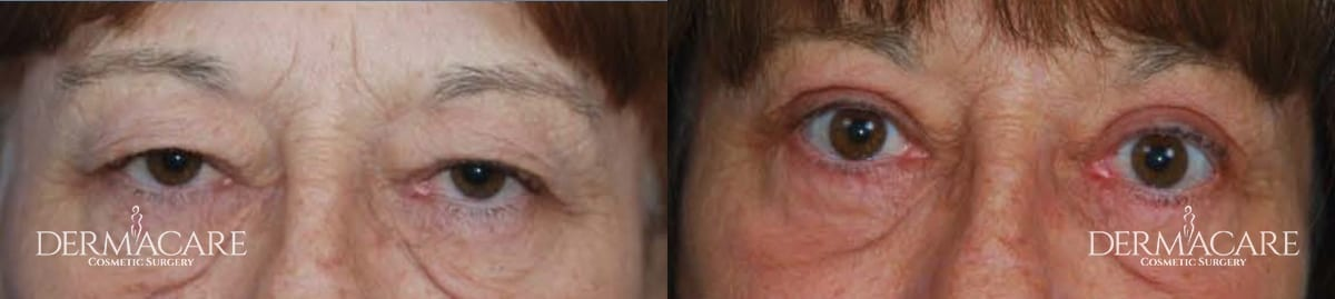 Blepharoplasty Before and After Patient 7