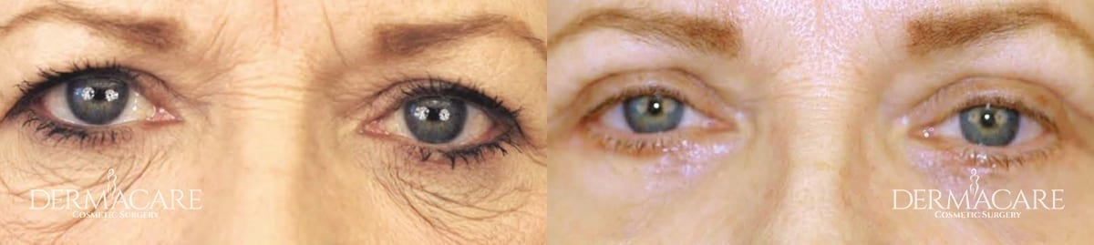 Blepharoplasty Before and After Patient 8