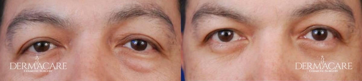 Blepharoplasty Before and After Patient 9
