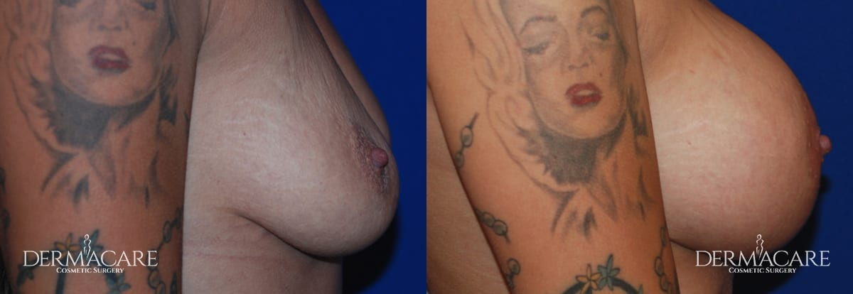 Breast Augmentation Before and After Patient 11