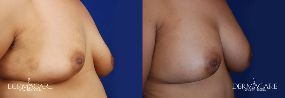 Breast Augmentation Before and After Patient 12