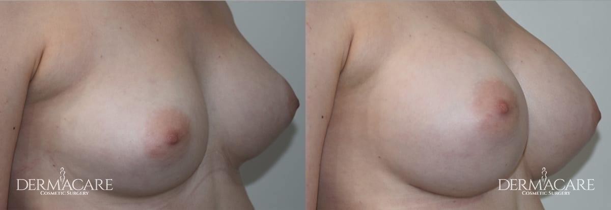 Breast Augmentation Before and After Patient 14