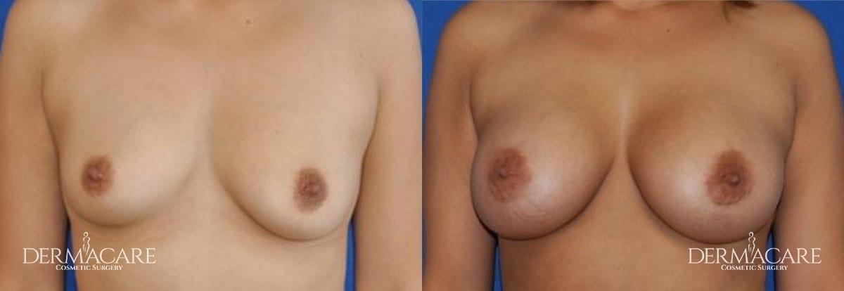 Breast Augmentation Before and After Patient 15