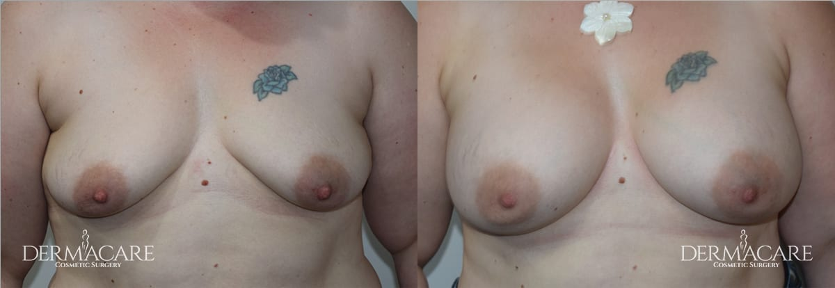 Breast Augmentation Before and After Patient 17