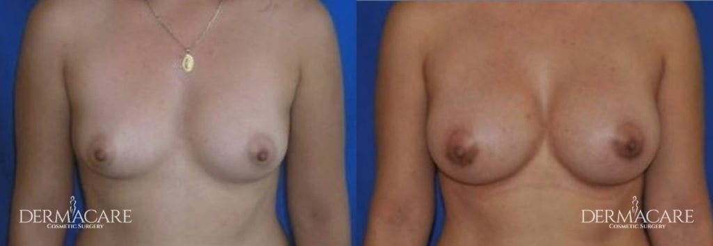 Breast Augmentation Before and After Patient 2a
