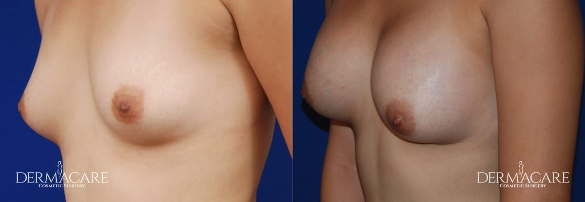 Breast Augmentation Before and After Patient 7