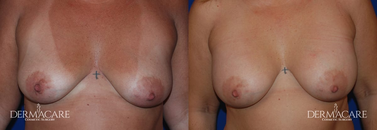 Breast Augmentation Before and After Patient 8