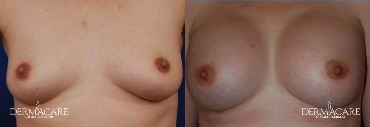 Breast Augmentation Before and After Patient 9