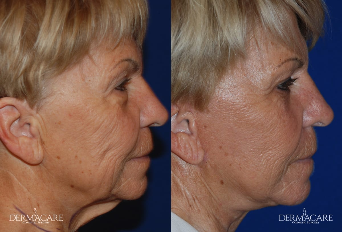 Face Lift Before and After Patient 2