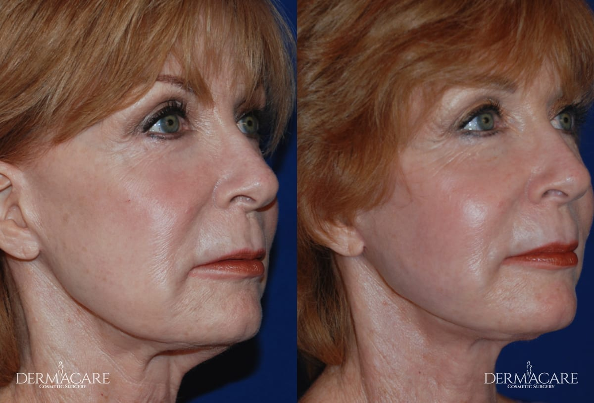 Face Lift Before and After Patient 3