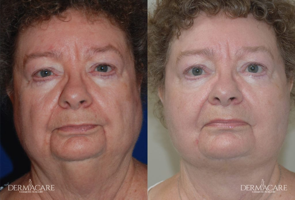 Face Lift Before and After Patient 4
