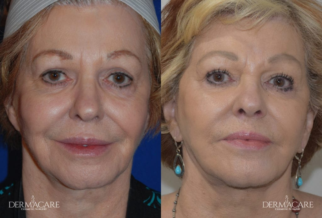 Face Lift Before and After Patient 8