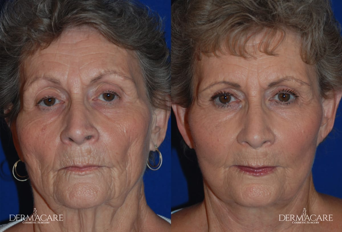 Face Lift Before and After Patient 1 - Phoenix Area