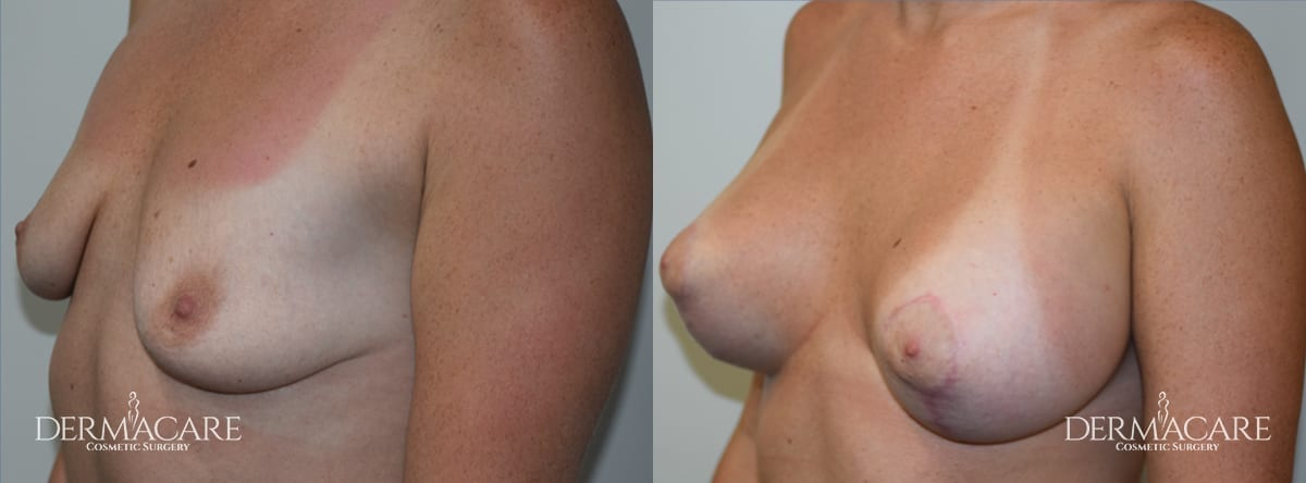 Mastopexy Augmentation Before and After Patient 1