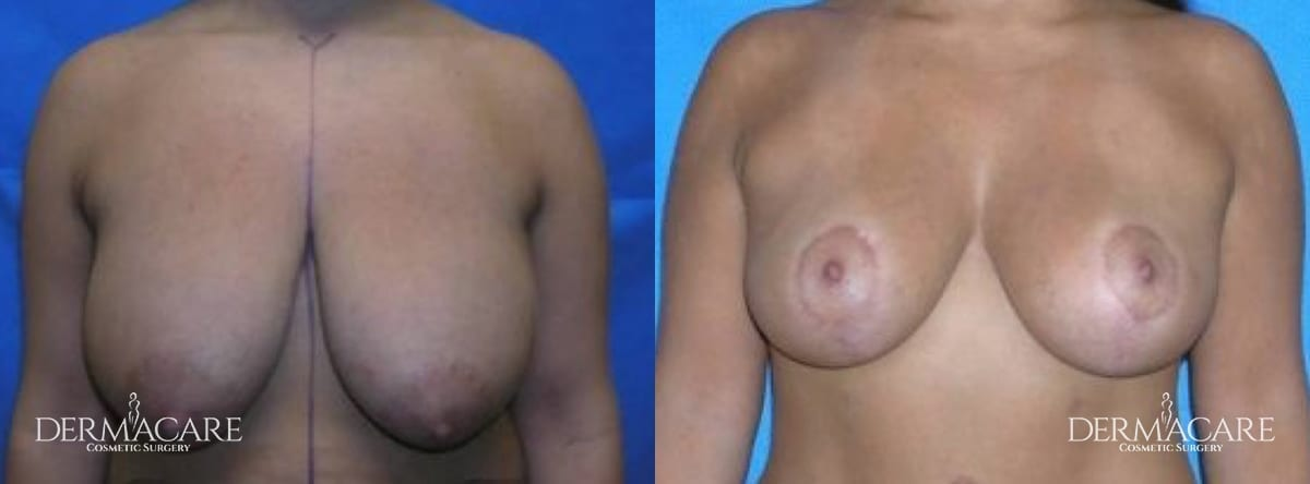 Mastopexy Augmentation Before and After Patient 2
