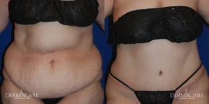 Tummy Tuck Before and After Patient 10b