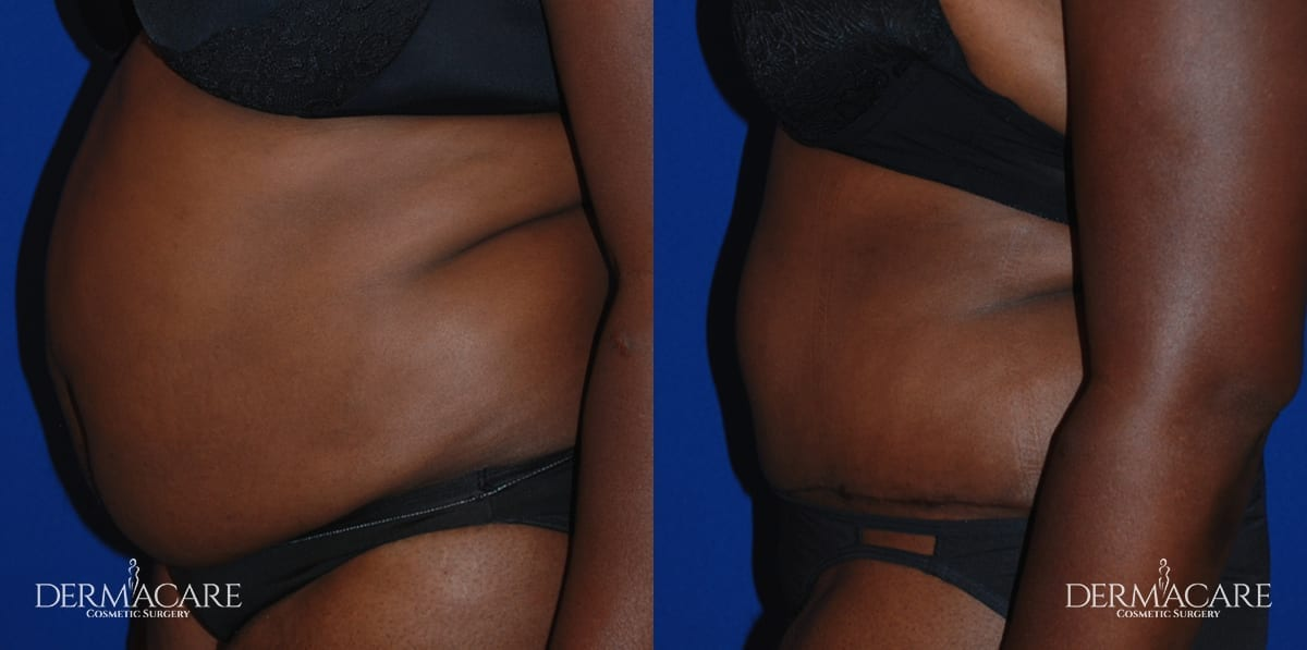 Tummy Tuck Before and After Patient 11