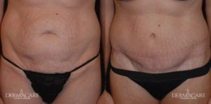 Tummy Tuck Before and After Patient 14a