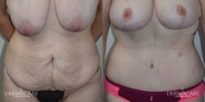 Tummy Tuck Before and After Patient 2b