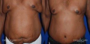 Tummy Tuck Before and After Patient 4b