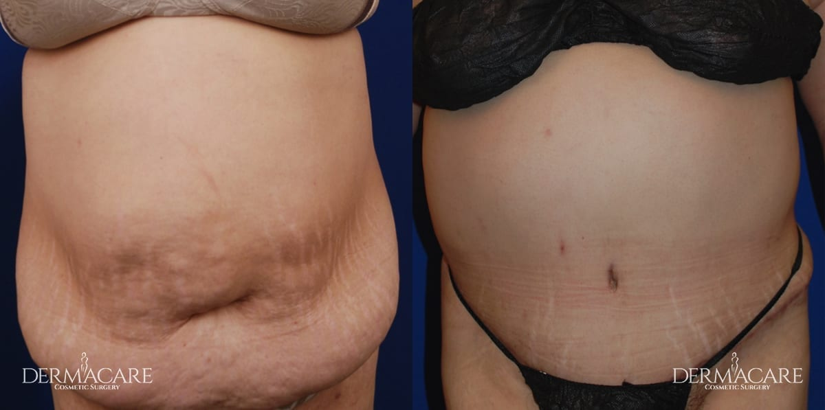Tummy Tuck Before and After Patient 5a