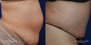 Tummy Tuck Before and After Patient 5b