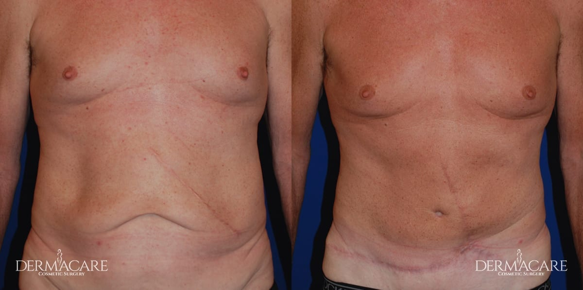 Tummy Tuck Before and After Patient 7