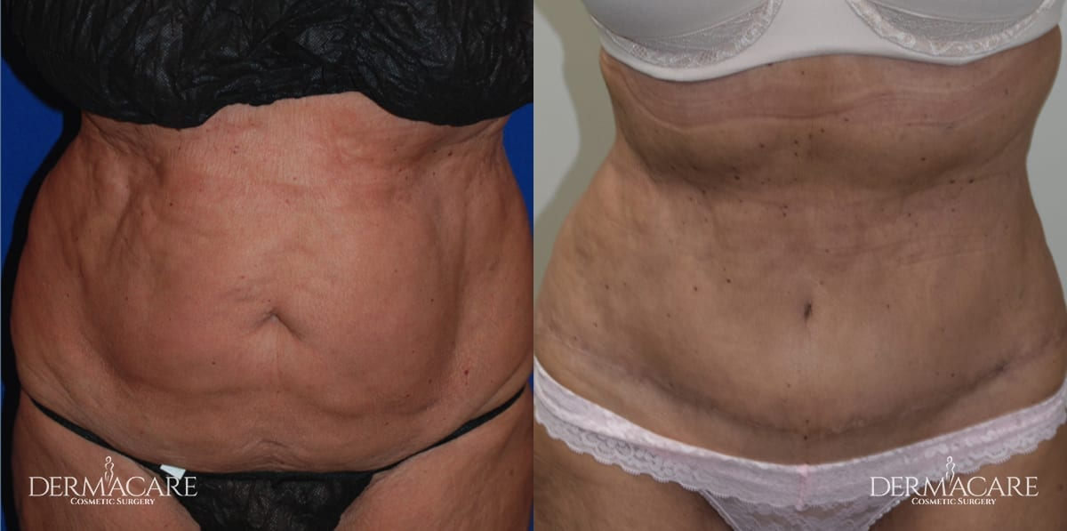 Tummy Tuck Before and After Patient 8b