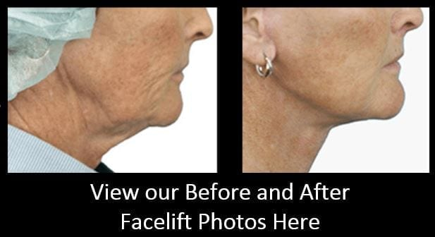 Facelift Before and After Photos from Dermacare Plastic Surgery - Servicing the Phoenix, AZ Area