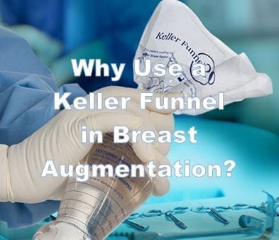 Title Image - Why Use a Keller Funnel In Breast Augmentation