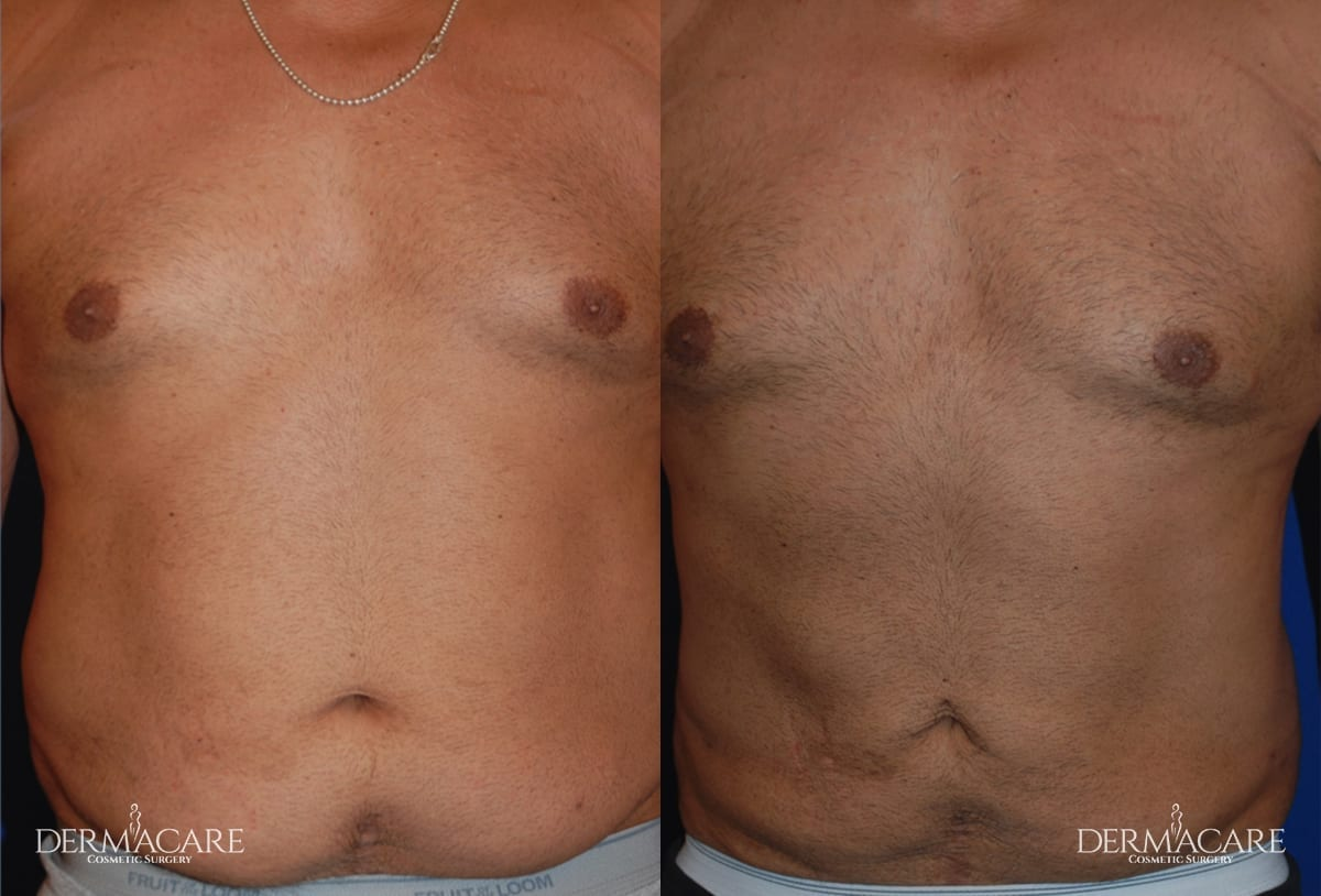 Before and After Male Patient 3