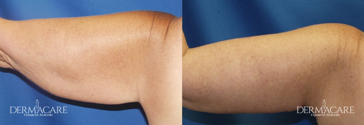 Arm Lift Before and After Patient 11