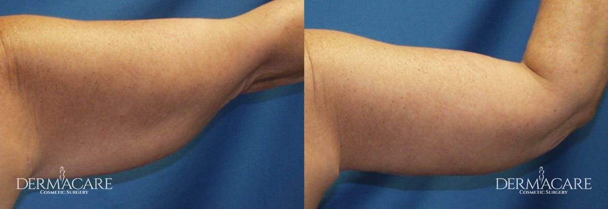 Arm Lift Before and After Patient 12