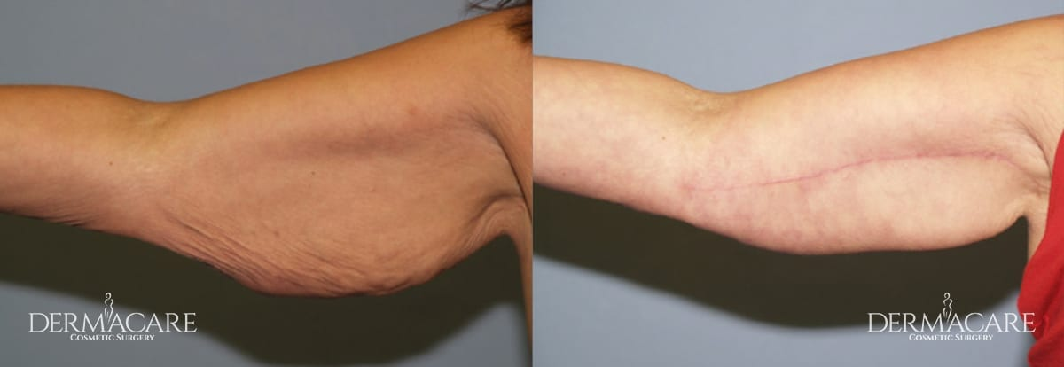Arm Lift Before and After Patient 13
