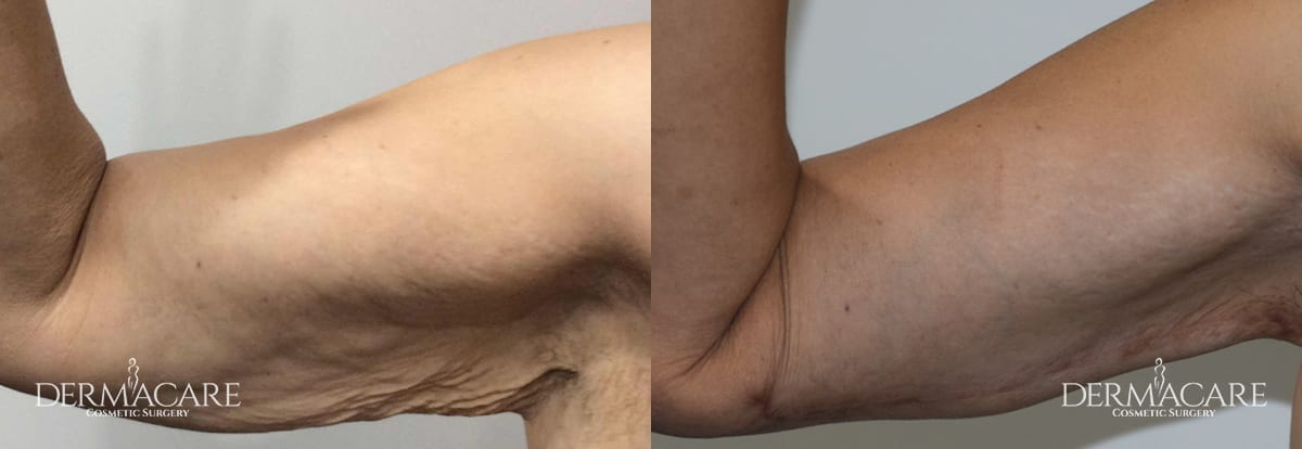 Arm Lift Before and After Patient 2