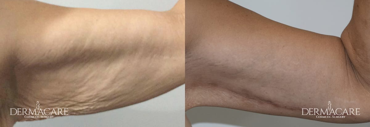 Arm Lift Before and After Patient 3