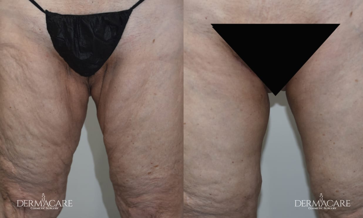 Thigh Lift Before and After Patient 1
