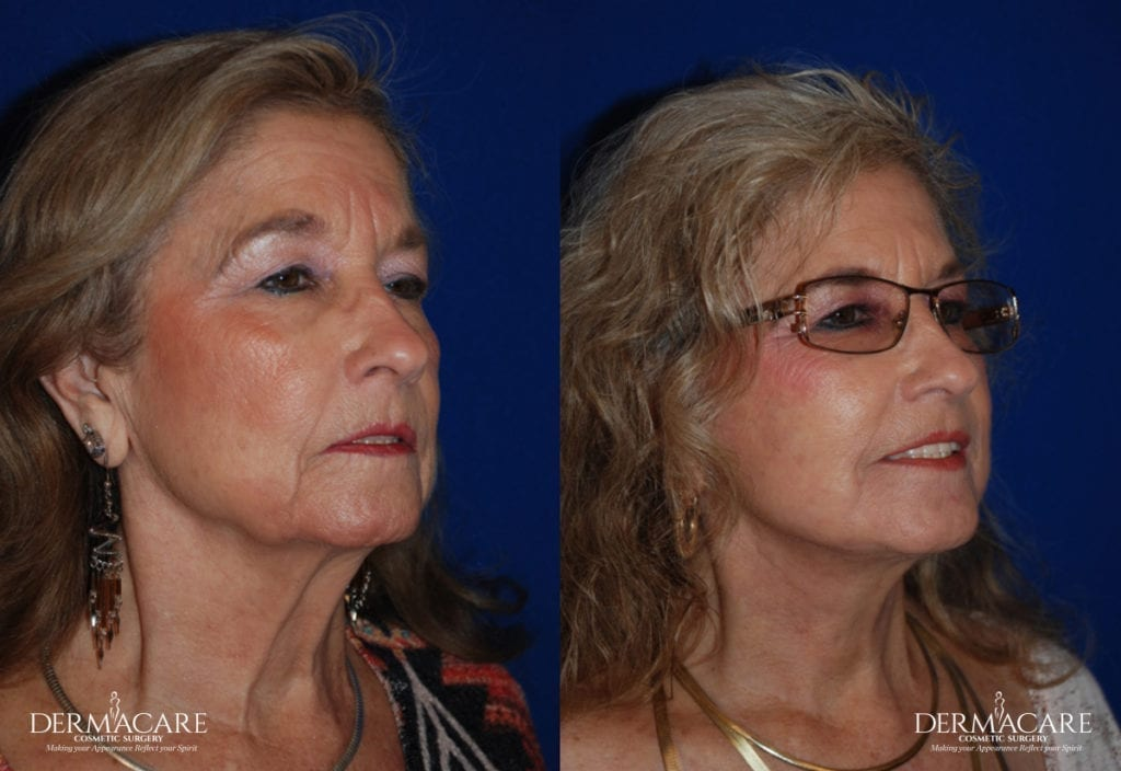 Dermacare_Before and after Specials page_Facelift