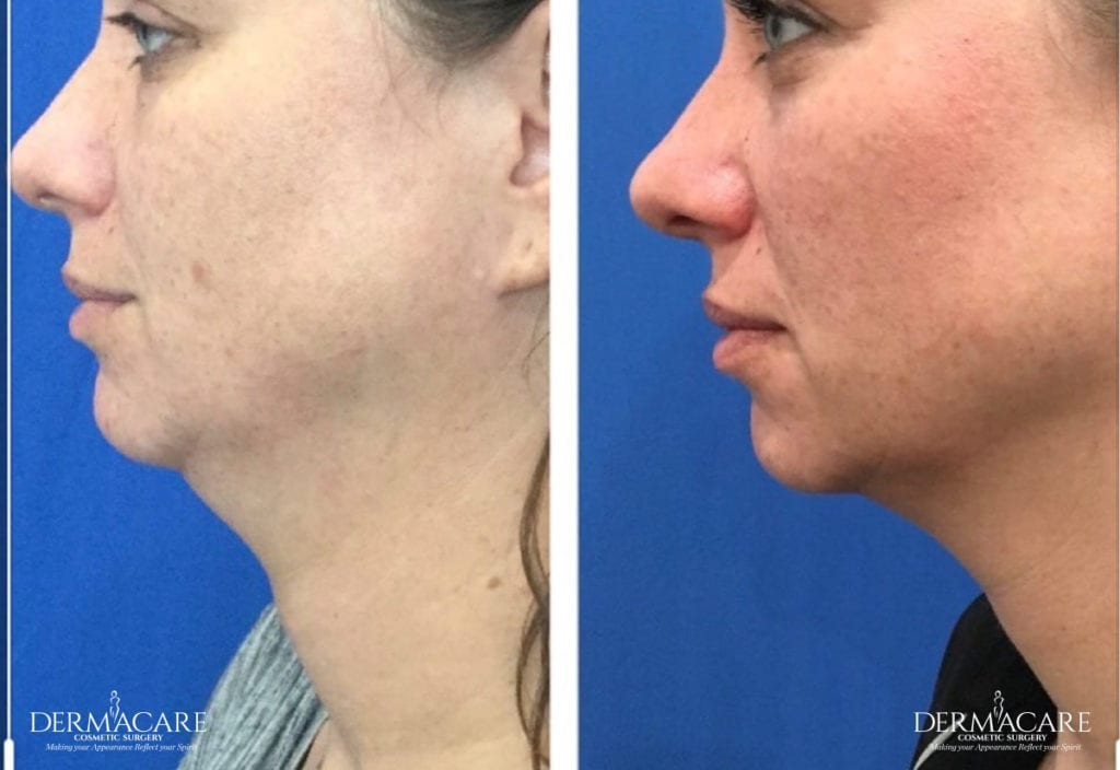 Dermacare_Before and after Specials page_Kybella1_2